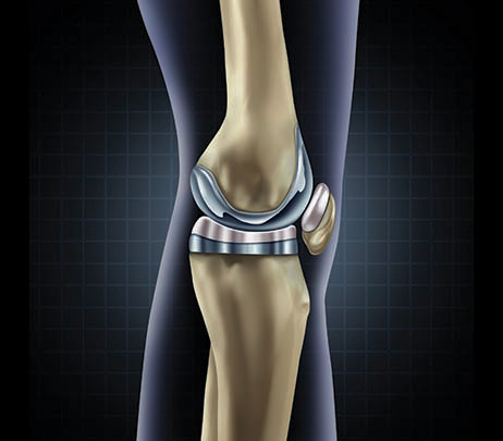 Surgical Successes: Total Joint Replacement